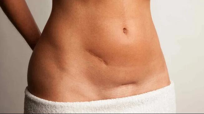 Read more about the article Parto cesareo e osteopatia